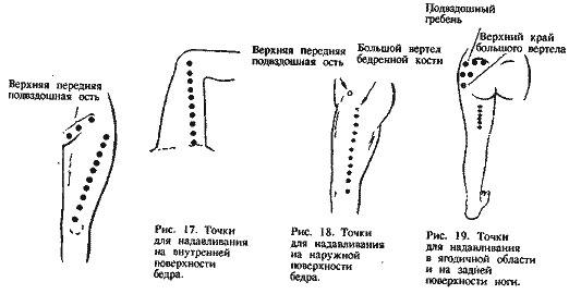 Акупунктурные точки тазобедренного сустава высокая температура ломит суставы